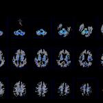 Darmiyan   MRI